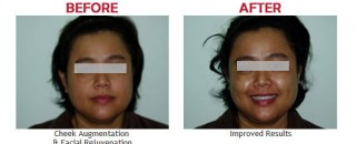 cheek-augmentation-treatment