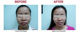 facial-reshape-treatment