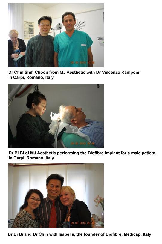 biofibre-hair-implant-3