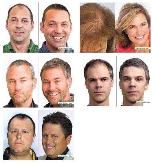 biofibre-hair-implant-6